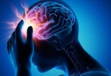 accidente cerebrovascular-cannabis-marijuana-marihuana